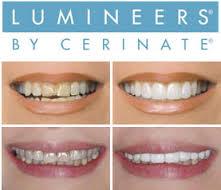 faccette-dentali-lumineers